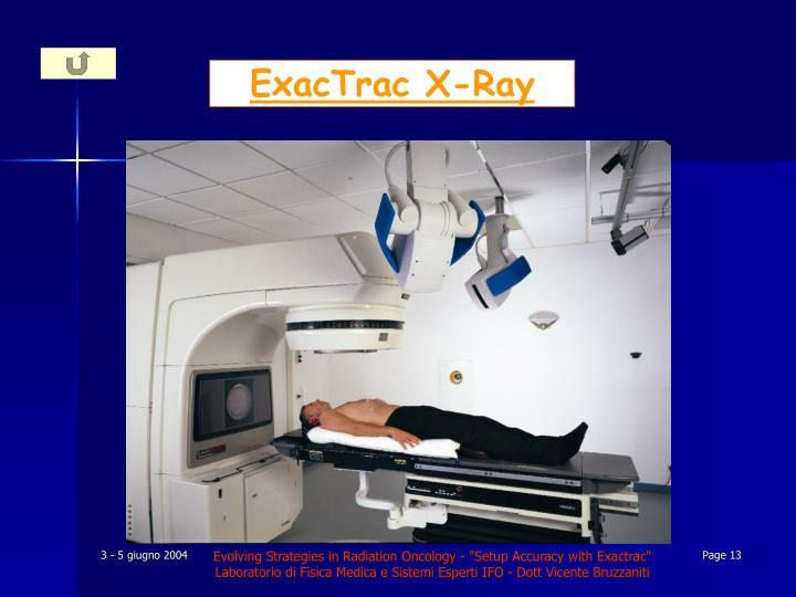 ExacTrac X-Ray