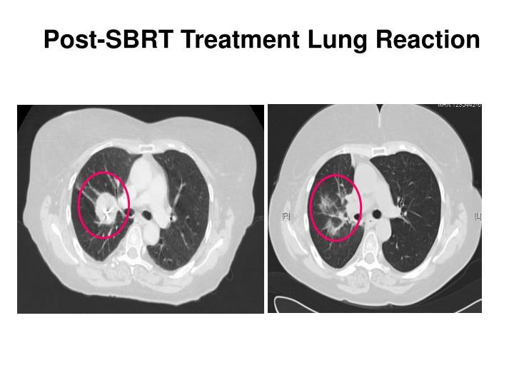 Post-SBRT Treatment Lung Reaction