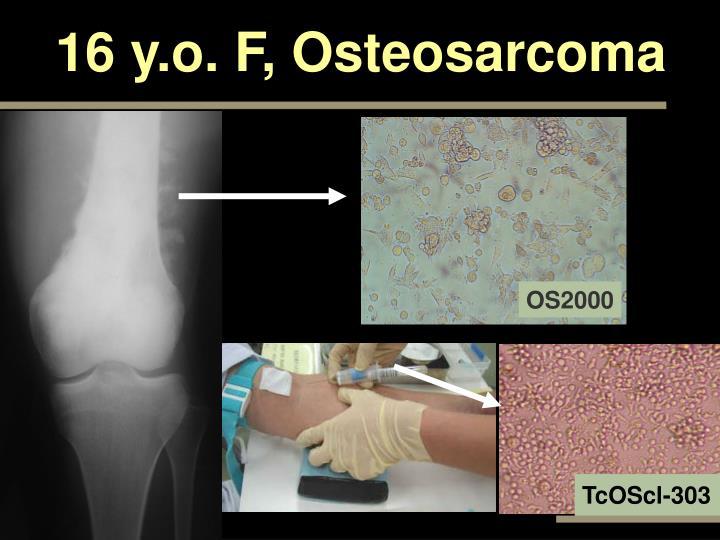 16 y.o. F, Osteosarcoma