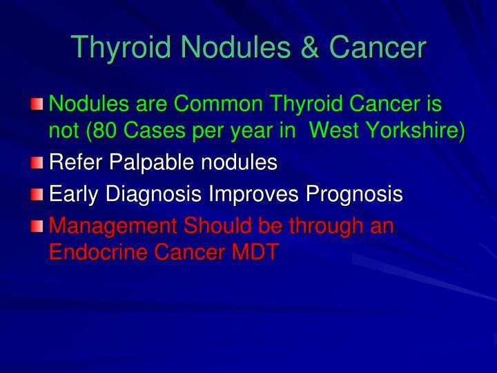 Thyroid Nodules & Cancer
