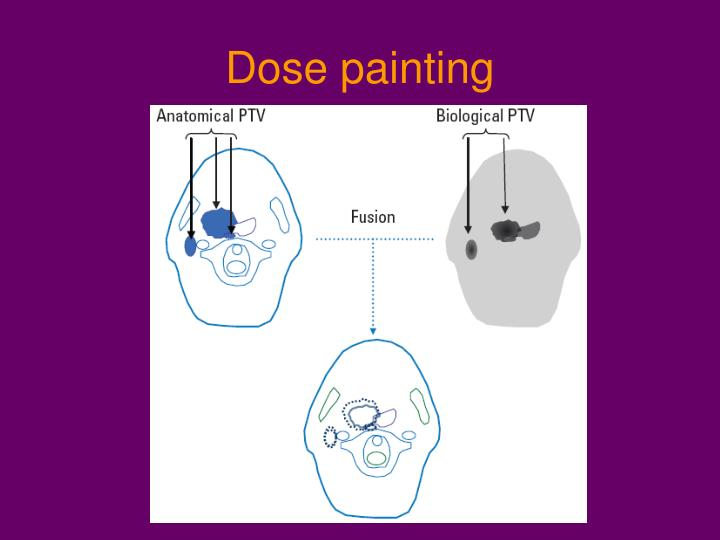 Dose painting