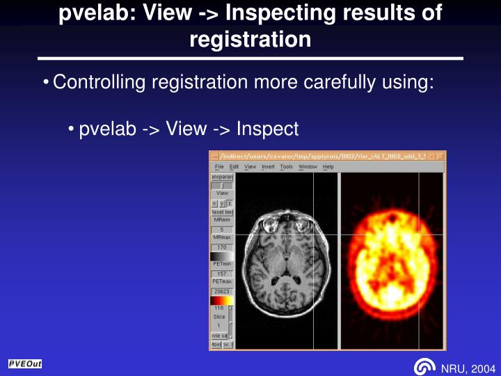 pvelab: View -> Inspecting results of registration