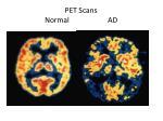 pet scans normal ad