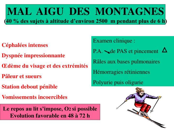 MAL  AIGU  DES  MONTAGNES