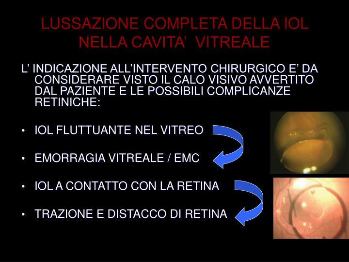 LUSSAZIONE COMPLETA DELLA IOL NELLA CAVITA'  VITREALE