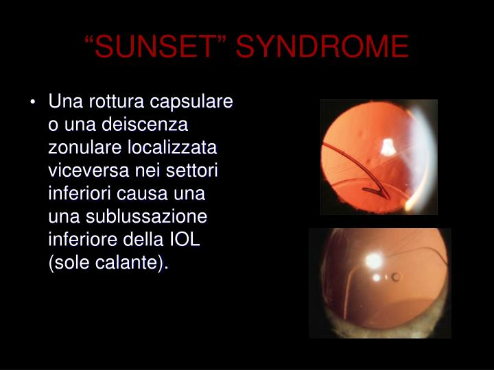"""""""SUNSET"""" SYNDROME"""