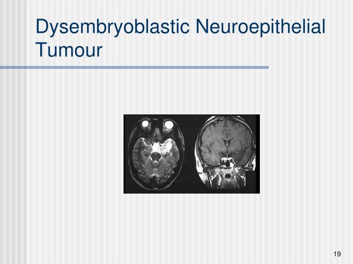 Dysembryoblastic Neuroepithelial Tumour
