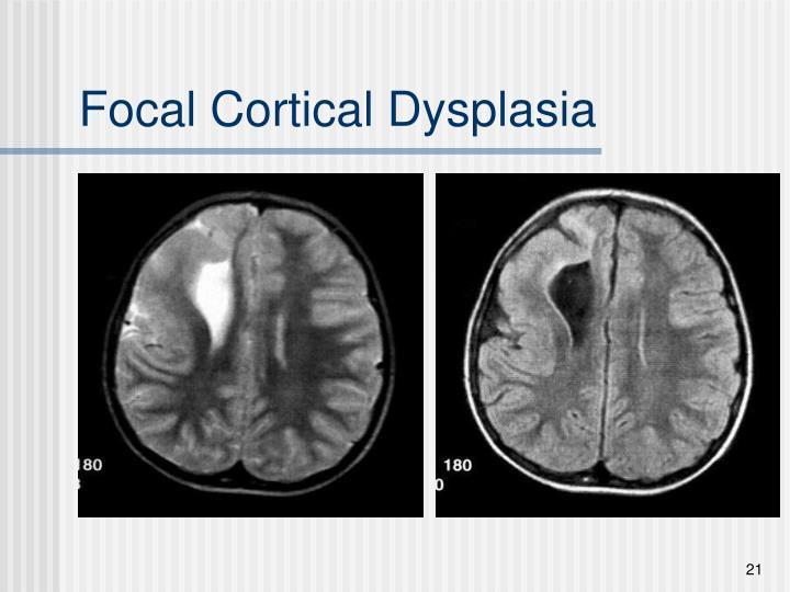 Focal Cortical Dysplasia