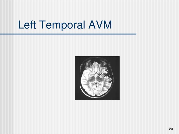 Left Temporal AVM