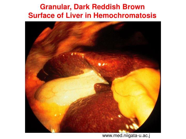 Granular, Dark Reddish Brown
