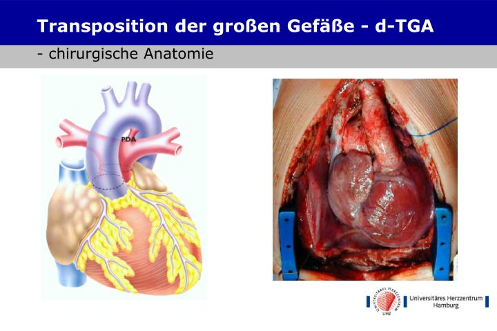 Transposition der großen Gefäße - d-TGA