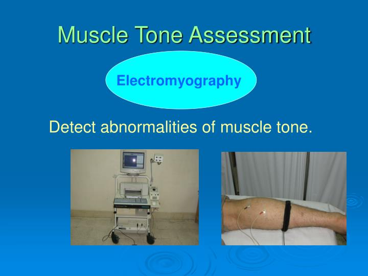 Muscle Tone Assessment