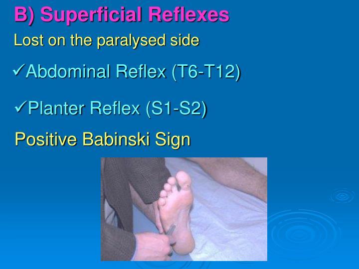 B) Superficial Reflexes