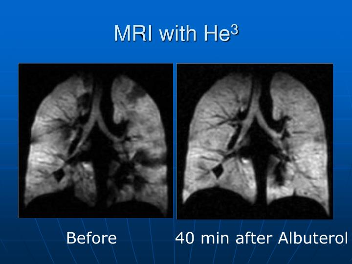 MRI with He
