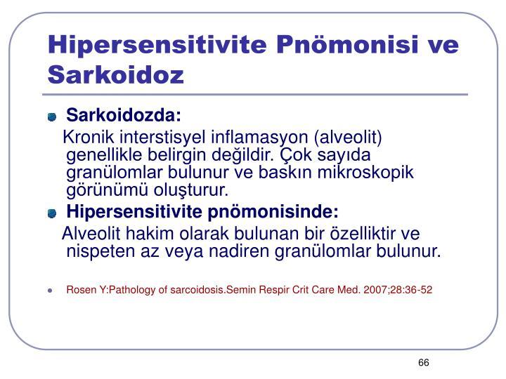 Hipersensitivite Pnömonisi ve Sarkoidoz