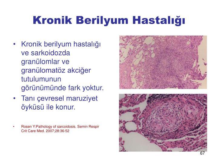 Kronik Berilyum Hastalığı