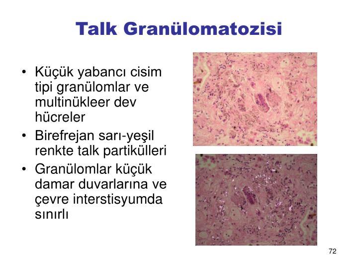 Talk Granülomatozisi