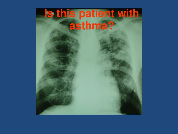 Is this patient with asthma?