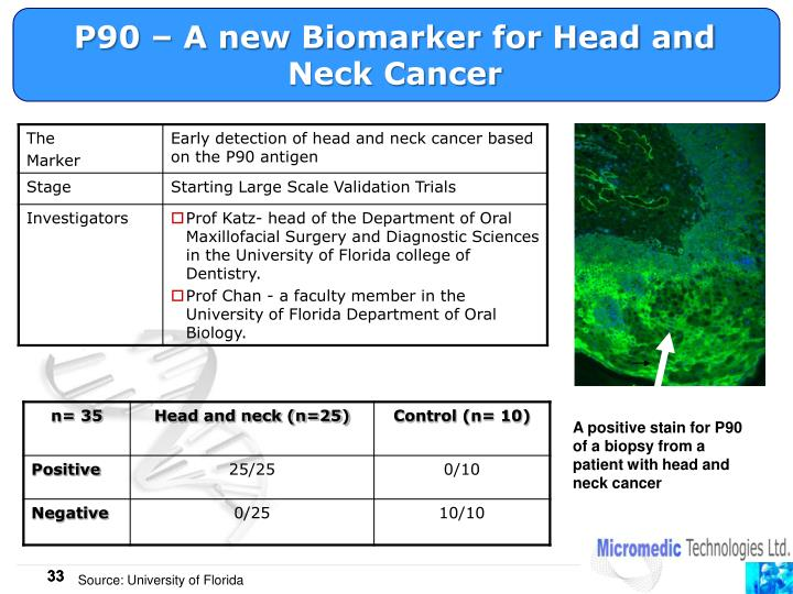 P90 – A new Biomarker for Head and Neck Cancer