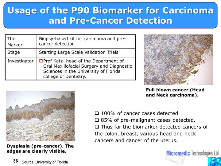 Usage of the P90 Biomarker for Carcinoma and Pre-Cancer Detection
