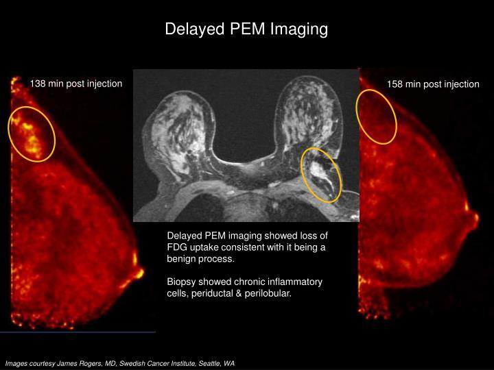 Delayed PEM Imaging