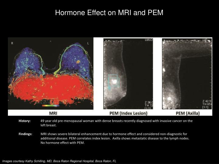 Hormone Effect on MRI and PEM