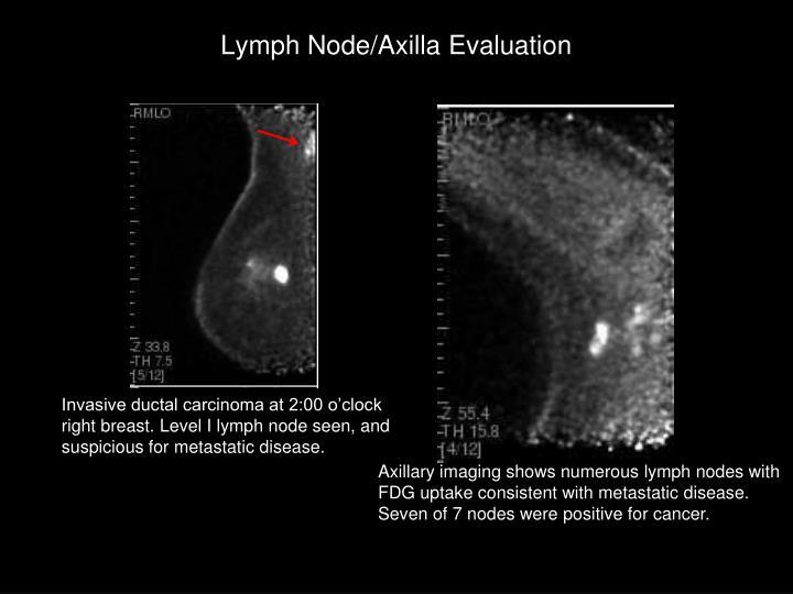 Lymph Node/Axilla Evaluation