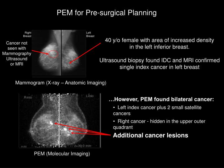 PEM for Pre-surgical Planning