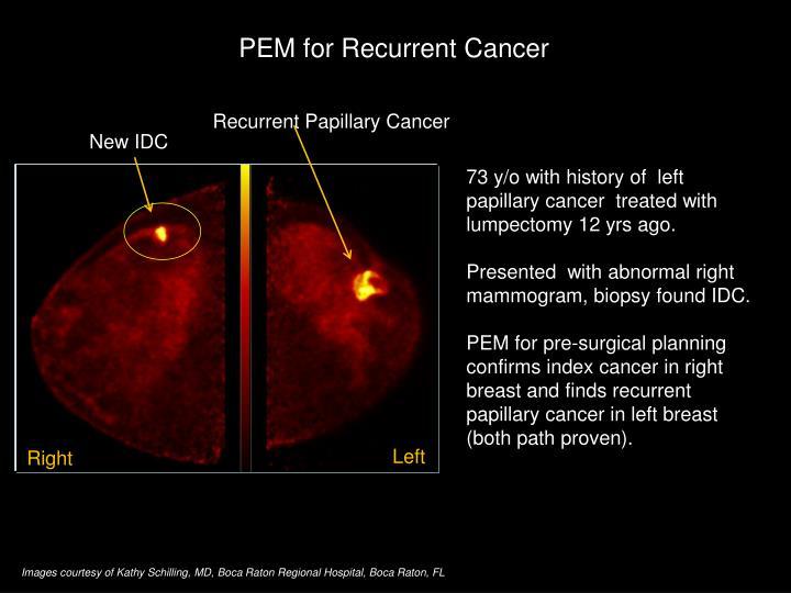 PEM for Recurrent Cancer