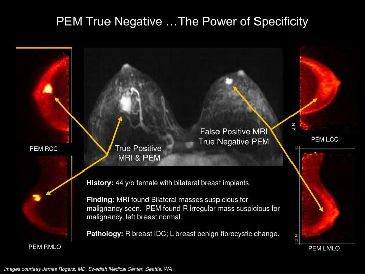 PEM True Negative …The Power of Specificity