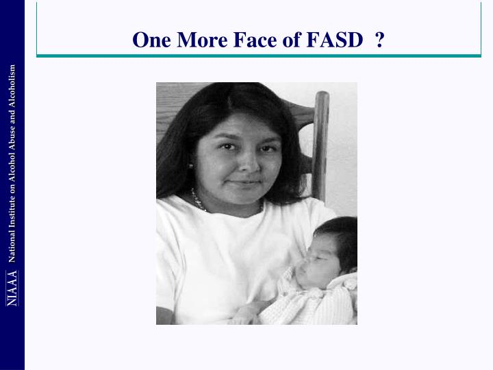 One More Face of FASD  ?