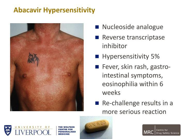 Abacavir Hypersensitivity