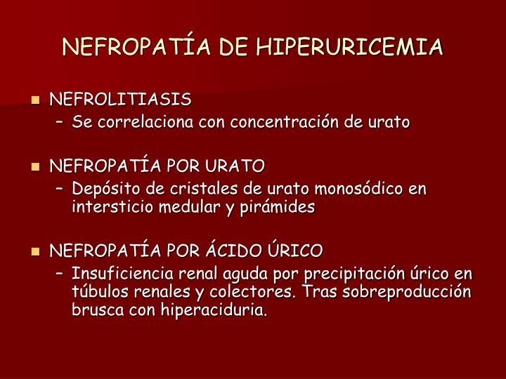 NEFROPATÍA DE HIPERURICEMIA