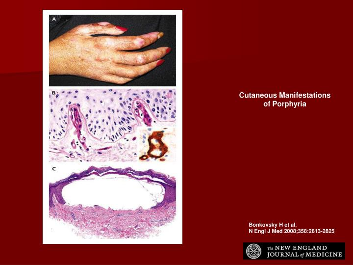 Cutaneous Manifestations of Porphyria