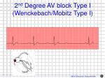 2 nd degree av block type i wenckebach mobitz type i1