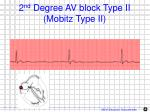 2 nd degree av block type ii mobitz type ii1