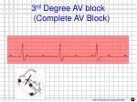 3 rd degree av block complete av block1