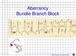 aberrancy bundle branch block1
