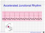 accelerated junctional rhythm1
