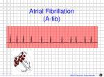 atrial fibrillation a fib1