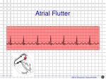 atrial flutter1
