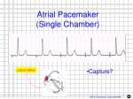 atrial pacemaker single chamber