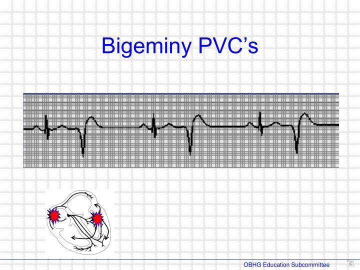 Bigeminy PVC's