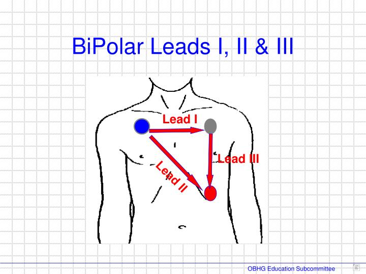 BiPolar Leads I, II & III