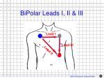 bipolar leads i ii iii