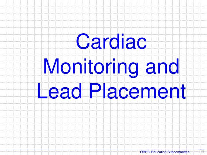 Cardiac Monitoring and
