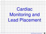 cardiac monitoring and lead placement