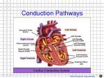 conduction pathways