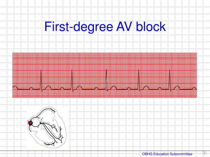 First-degree AV block