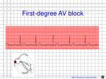 first degree av block1